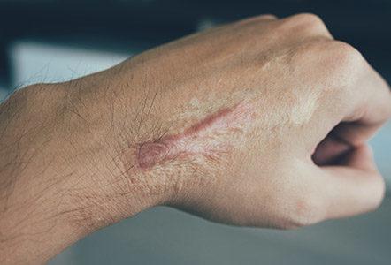 is my keloid scar getting worse