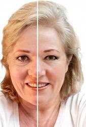 laser resurfacing to treat acne scars